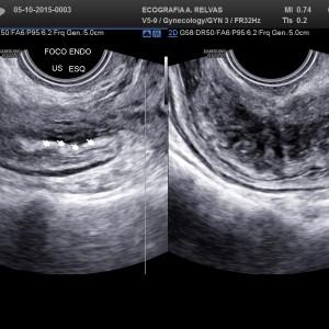 Foco de Endometriose Rectal extenso infiltrativo em 2D/3D